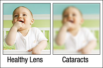Healthy Lens Cataracts in Reading, PA