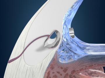 iStent® Trabecular Micro-Bypass in Reading, PA