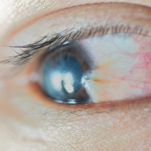 What causes pterygium Reading PA
