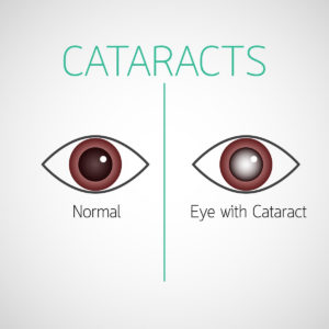 Cataract Awareness Month