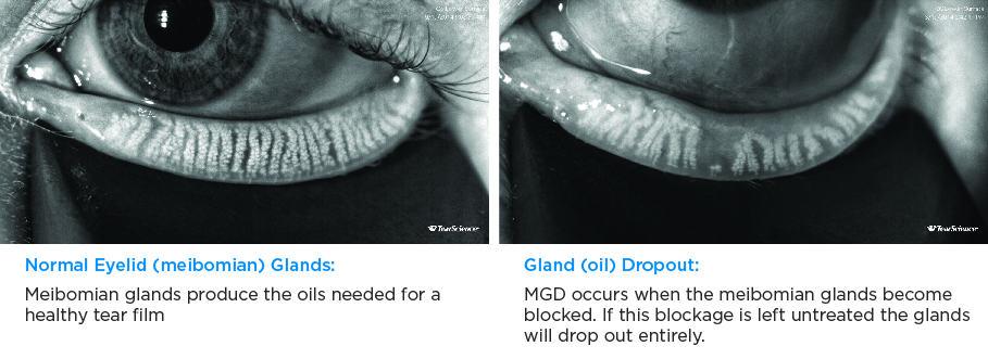 DMI Normal vs MGD Gland Comparison