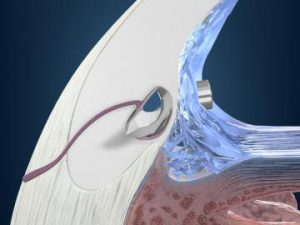 iStent Trabecular Micro-Bypass Reading, PA