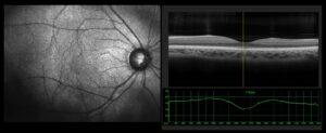 Eye Exam (OCT) for Detecting a Retinal Tear/ Detachment