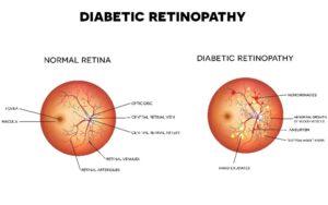 Diabetic Retinopathy Treatment in Reading, PA